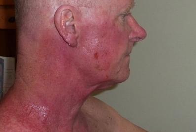 Brûlures post-radiothérapie