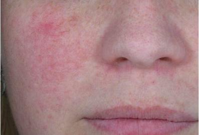 Reddish complexion